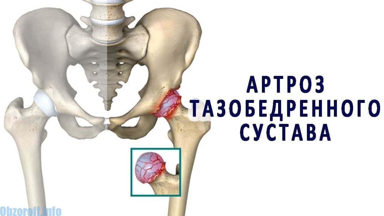 Am artroza articulației șoldului