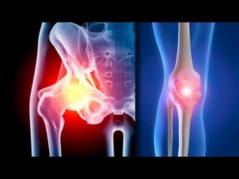 Relief Pentru Șold Artritic
