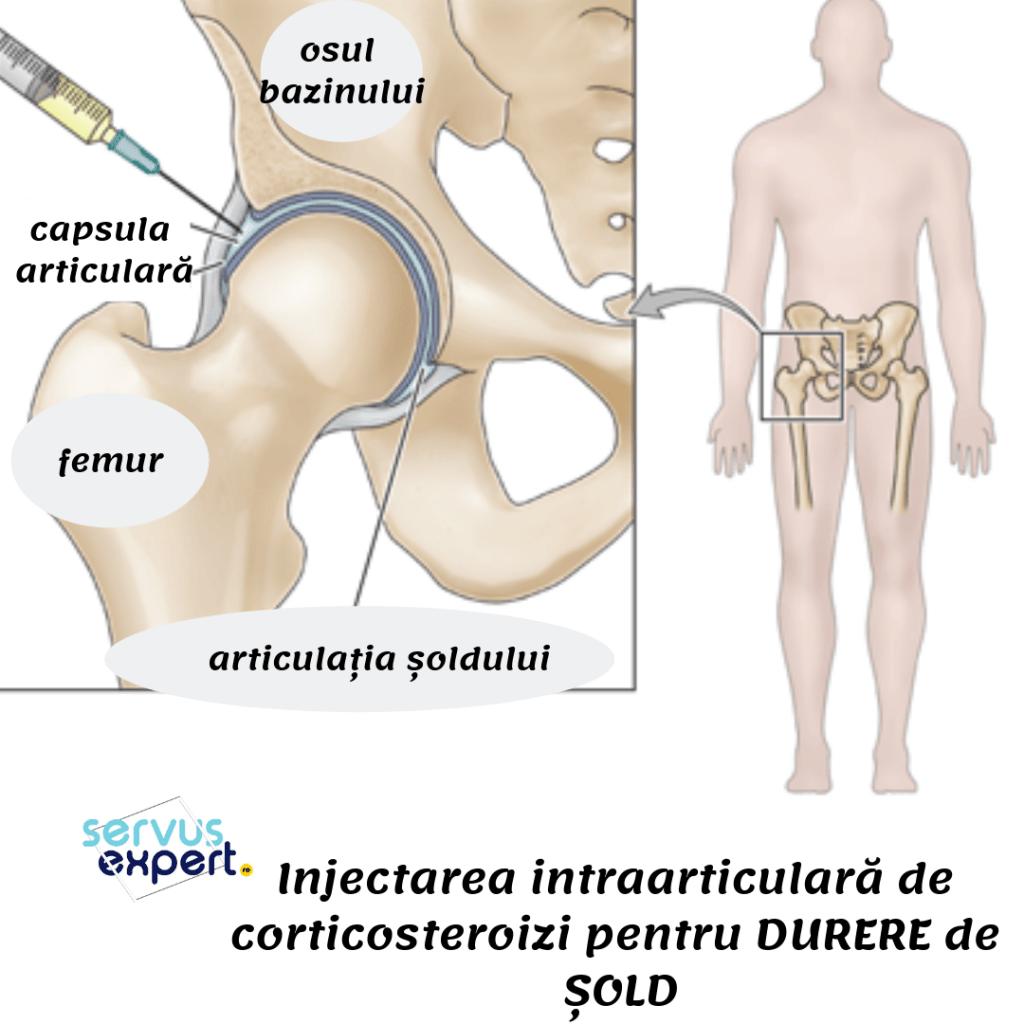 care tratează durerea în articulația șoldului