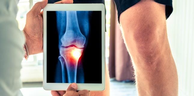 Articulațiile din genunchi creează decât pentru a trata