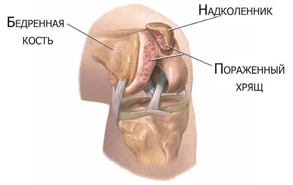 inflamația genunchiului 1 grad