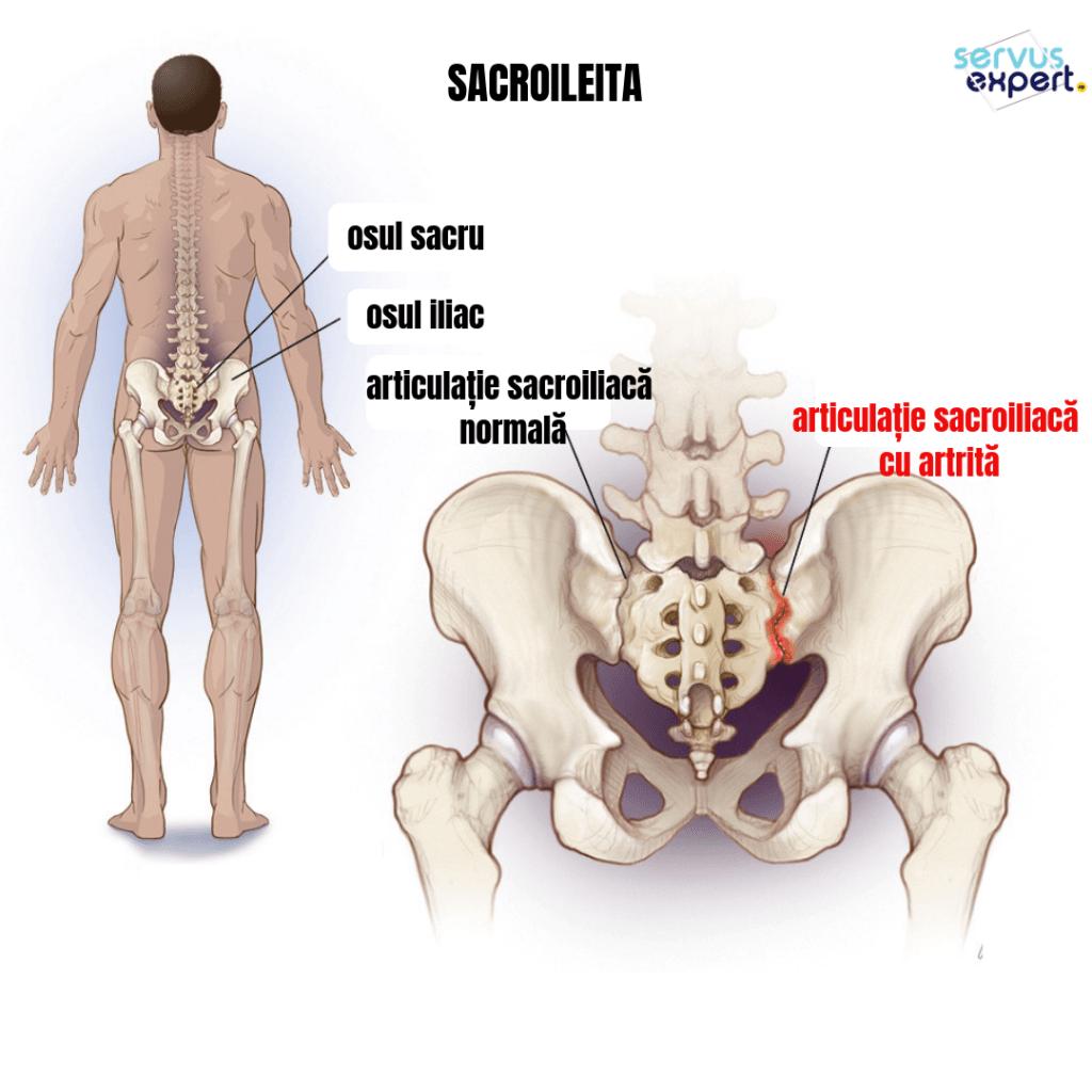 durere la nivelul articulațiilor sacroiliace