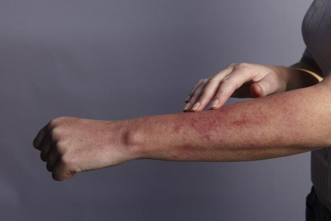 tratamentul coxartrozei displazice a articulației șoldului