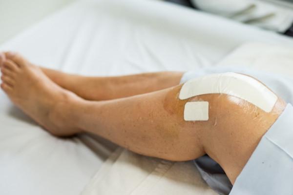 tratați un ligament la genunchi