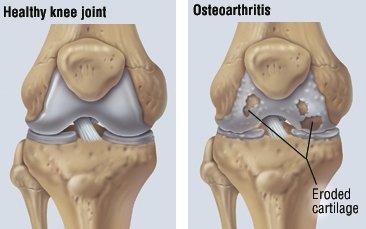 Cum se tratează osteoartroza genunchiului 3 grade