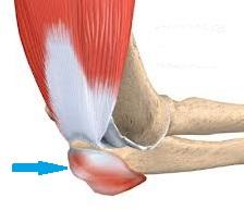 artroza difuză a șoldului