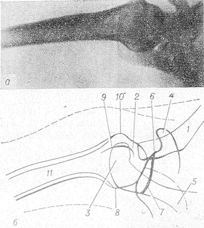 Osteocondroza articulației umărului: simptome, tratament, cauze, Osteochondroza articulației cu