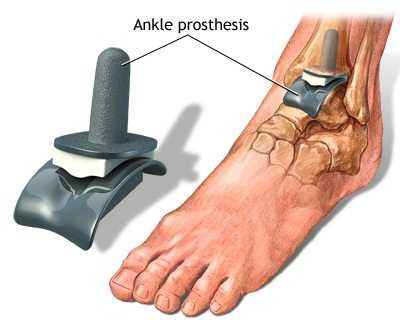 umflarea articulației gleznei cu artroză