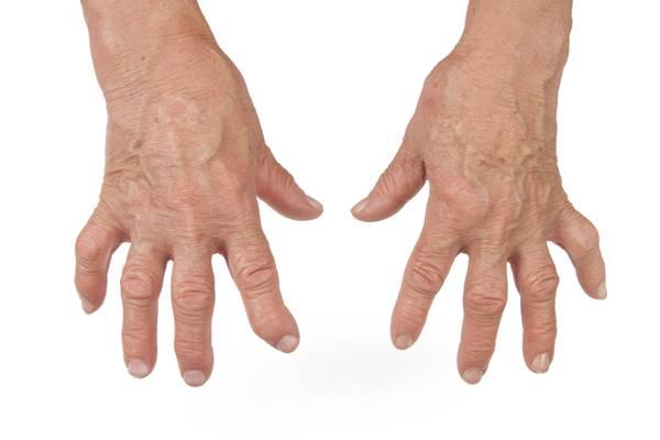 deformarea articulației degetelor și durere
