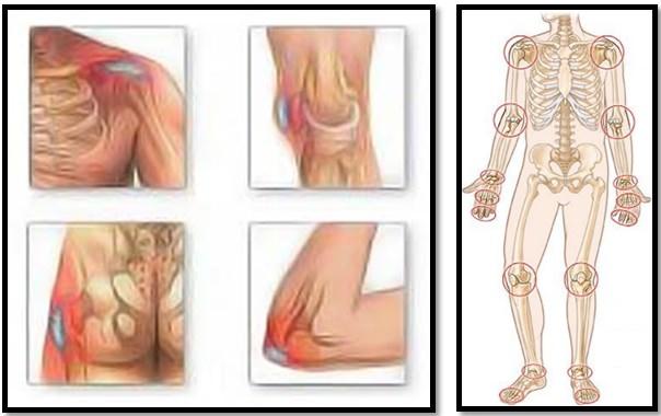 artroza din ceea ce rănesc articulațiile