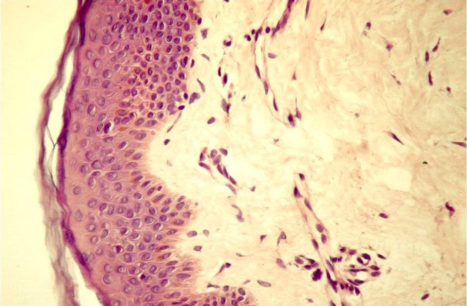 Preparat de histologie a țesutului conjunctiv fibros liber, Patologie sau normă