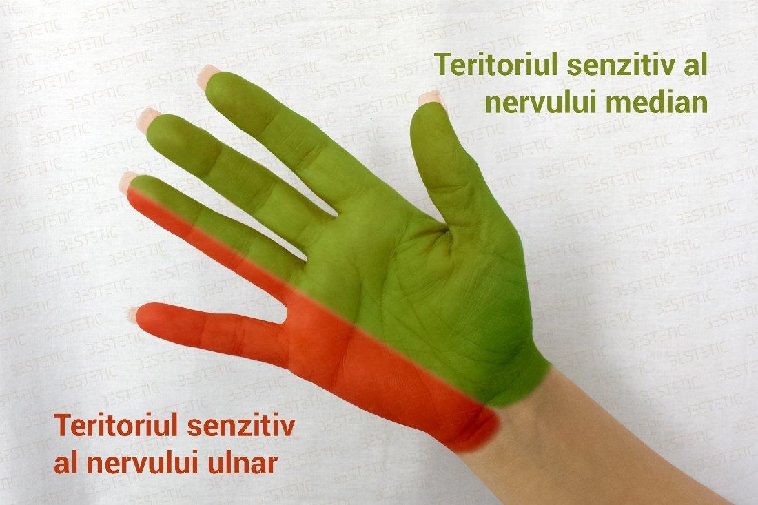 durere severă cu inflamația genunchiului medicamente pentru tratamentul artrozei și artritei cu medicamente