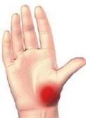articulația degetului mare doare cu adevărat cauza durerii în articulațiile picioarelor