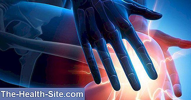 meniscus vătămare lacrimă menisc injecții articulare cu gel hialuronic