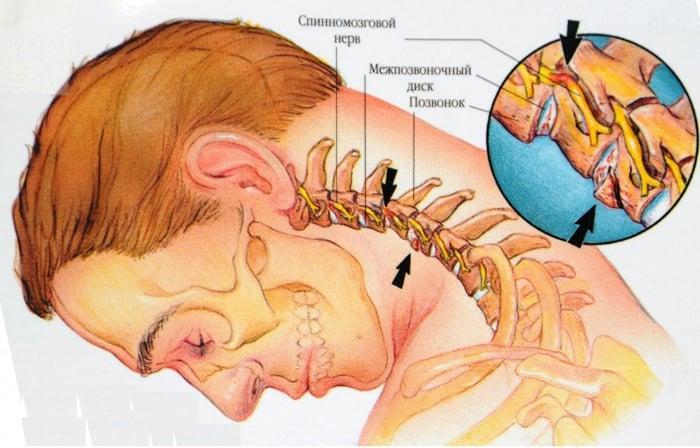 umflarea gleznei, dar nu doare cum se tratează osteochondroza cervicală cu unguente