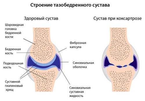 tratamentul coxartrozei articulației șoldului de 1 grad