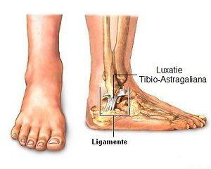 dislocarea timpului de recuperare a articulației gleznei dureri la genunchi stâng