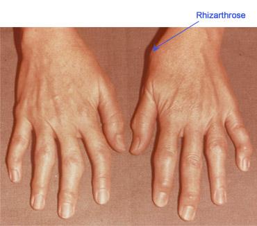 tratament de mărire a articulațiilor degetelor