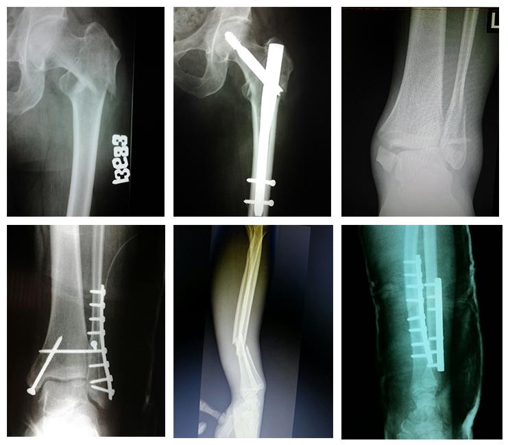 fractură de istoric medical la genunchi tratamentul durerilor de cot reflectate
