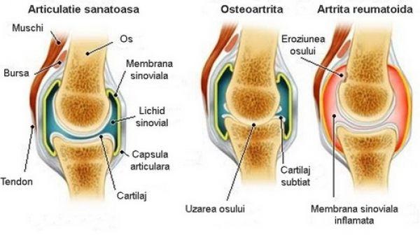 artrita articulară ileozacrală artrita erozivă a genunchiului