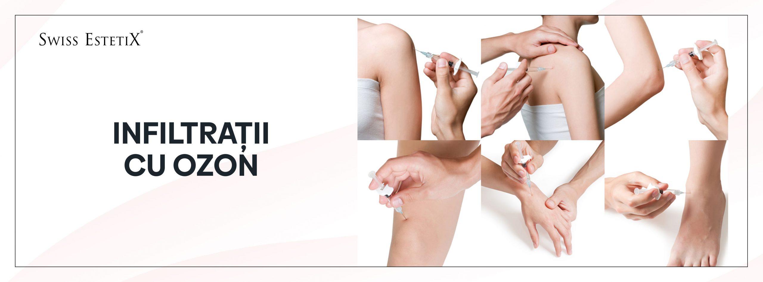boala cotului și tratament cum să tratezi durerile articulare cu edem