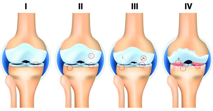 articulațiile genunchiului tratează artroza