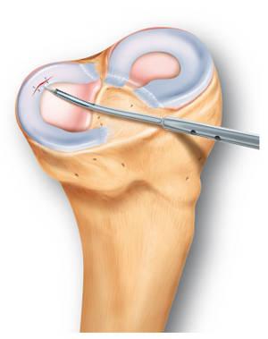 deteriorarea sinovitei meniscului intern al articulației genunchiului medicamente și tratamentul artrozei genunchiului