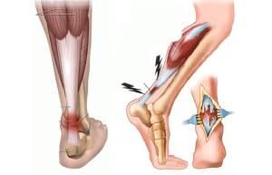 Deteriorarea restaurării ligamentelor gleznei. Glezna Durere 2 Săptămâni După