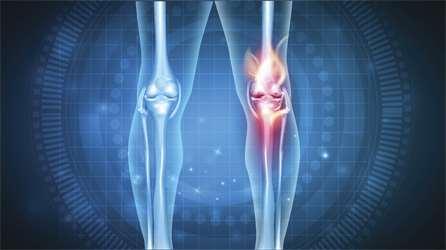 artroza 2 - 3 grade de tratament