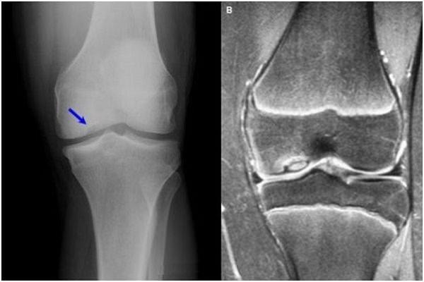 articulațiile genunchiului doare ce să ia