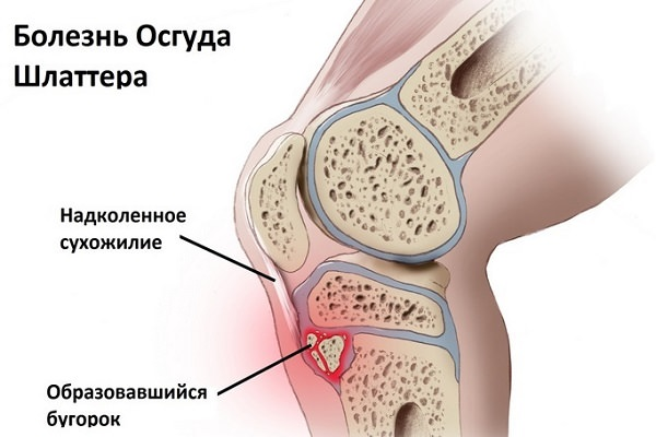 Glosar de anatomie - Wikipedia
