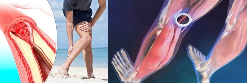 durere la nivelul vaselor sau articulațiilor picioarelor simptomele doare articulațiile