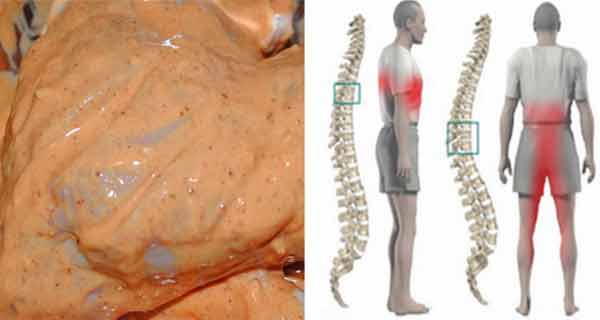 medicamente homeopate pentru tratamentul genunchiului