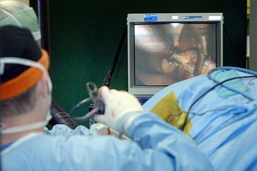 durere inghinală după o intervenție chirurgicală de înlocuire