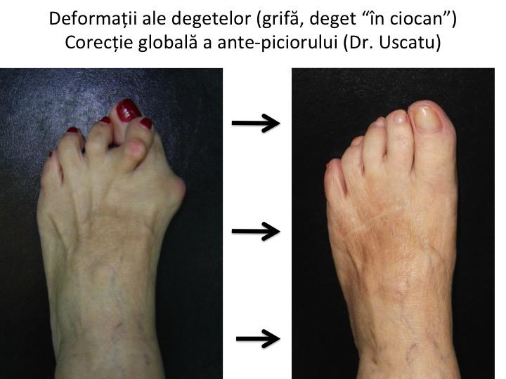 ce unguente pentru artrita degetului de la picior