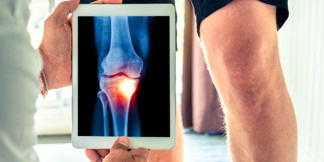 entorsa perioadei de tratament a articulației genunchiului