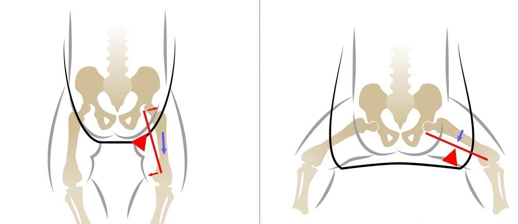 Tratamentul subluxației șoldului Add Comment