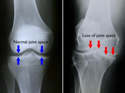 cum se tratează artroza genunchiului de gradul I