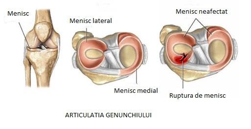 menisc al simptomelor articulației genunchiului tratament medicamente steroizi pentru artroza genunchiului