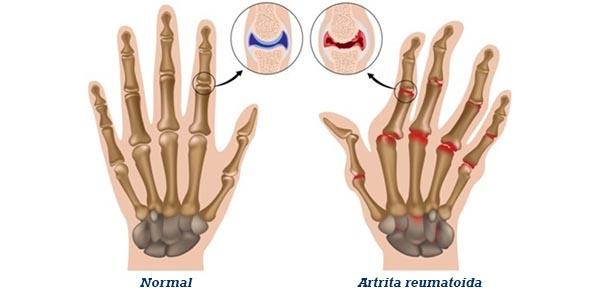 cum să tratezi o boală a articulației șoldului tablete de diclofenac pentru dureri articulare
