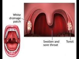 tratamentul infecției streptococice la nivelul articulațiilor ibuprofen pentru dureri în articulația genunchiului