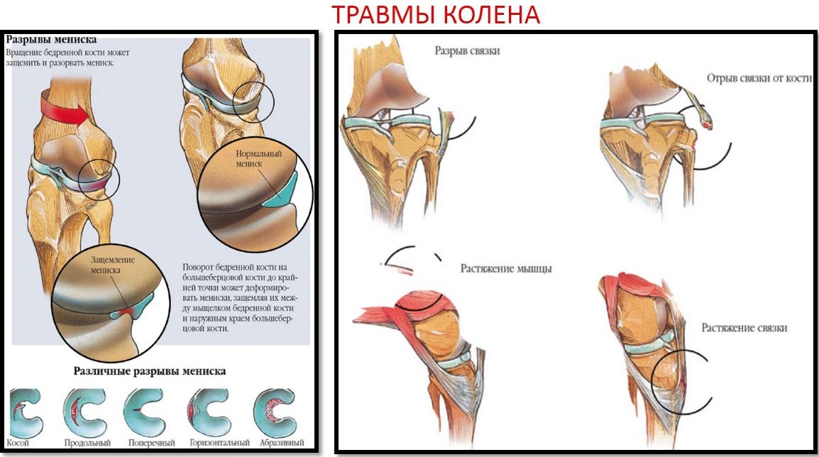 unguente nesteroidiene pentru dureri articulare coxartroza durerii genunchiului de șold