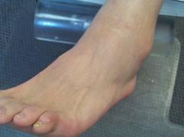 Entorsa si fractura de glezna: cum le deosebesti si cum se trateaza