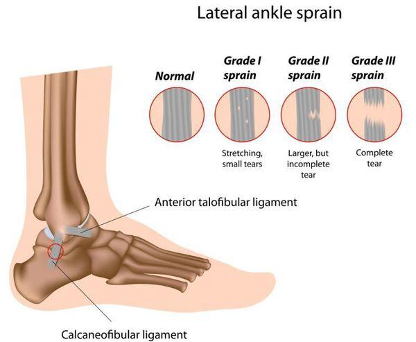 Tratament pentru bursita articulației gleznei, Bursita piciorului: tratament și prevenire