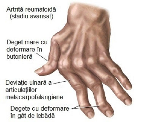 cum se poate trata inflamația articulațiilor mâinilor suprasolicitarea articulației genunchiului