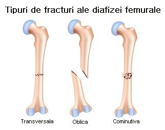 fractură de istoric medical la genunchi durere severă la genunchi cu o crenguță