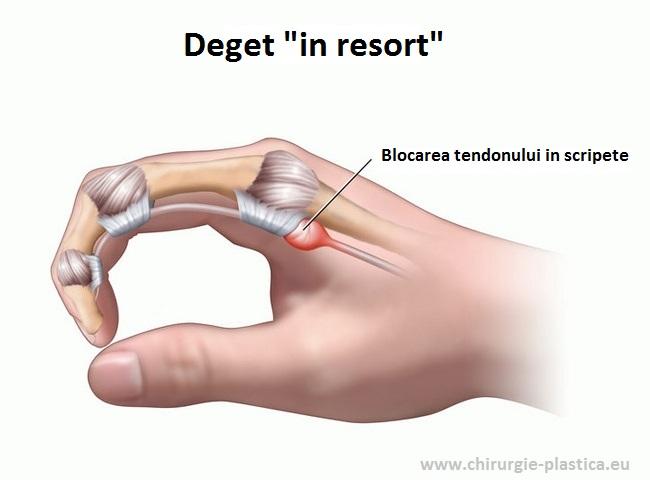 refacerea articulației degetului mare pret cremă comună de unde să cumpărați