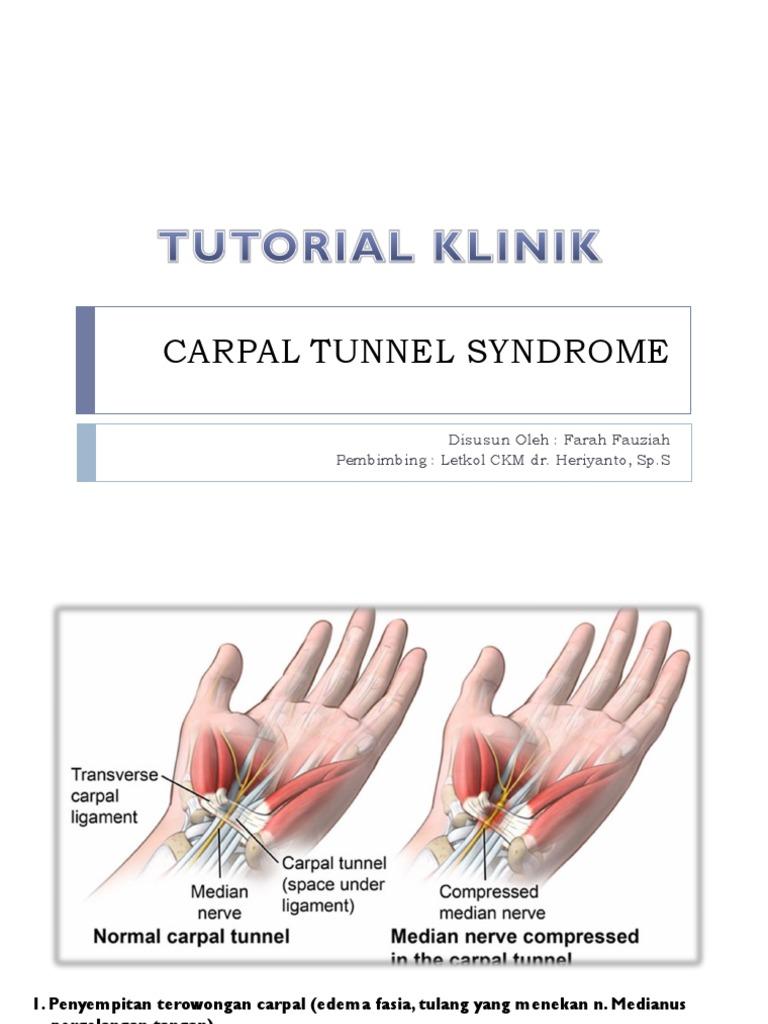 Sindromul de tunel carpian - CSID: Ce se întâmplă Doctore?