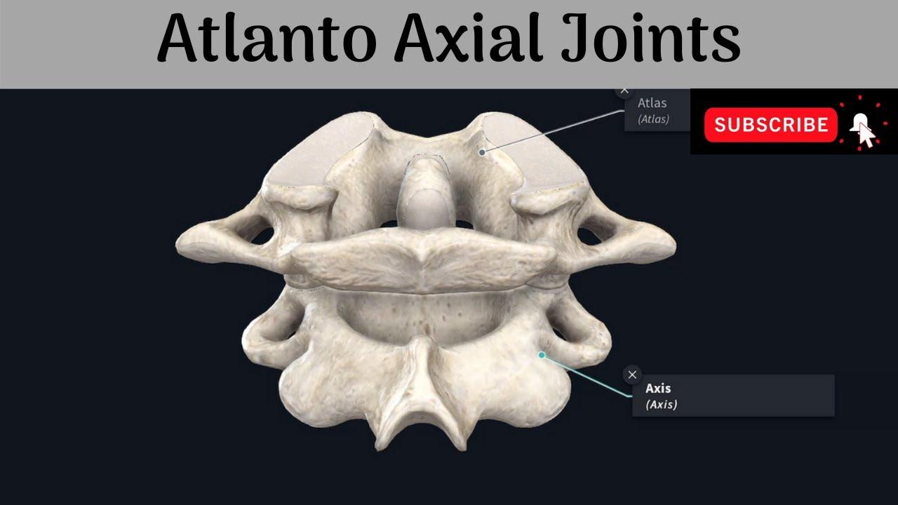 tratament articular atlantoaxial