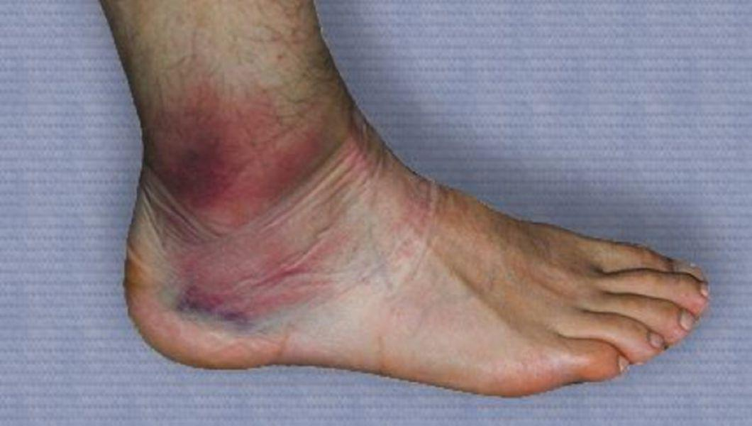 tratați genunchii